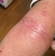 allergic reaction elbow